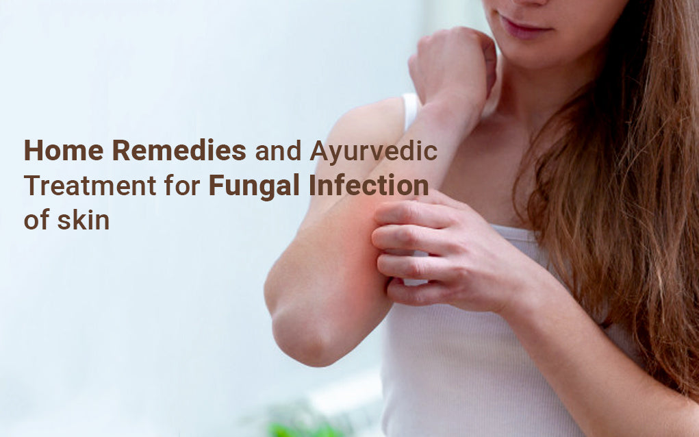 Home remedies and ayurvedic treatment for fungal infection of skin
