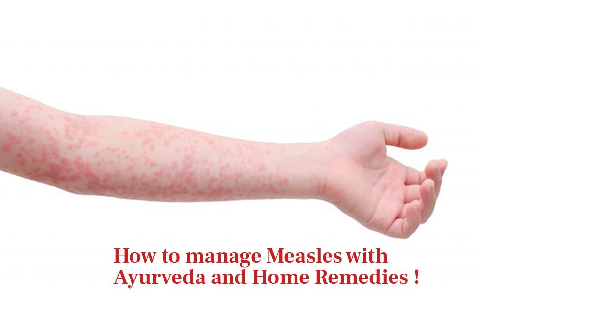 how to manage measles with ayurveda