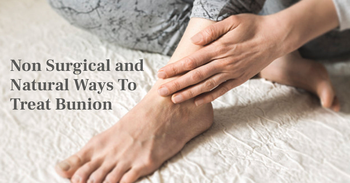 Non Surgical and Natural Ways To Treat Bunion