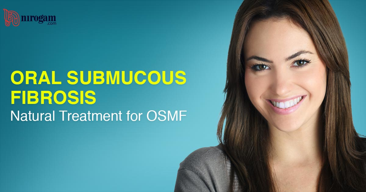 Oral Submucous Fibrosis – Natural Treatment for OSMF