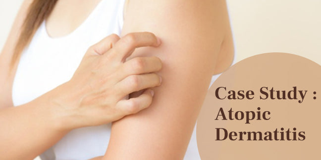 A Case Study Of Atopic Dermatitis Treated Using Ayurvedic Medication & Diet  Complain