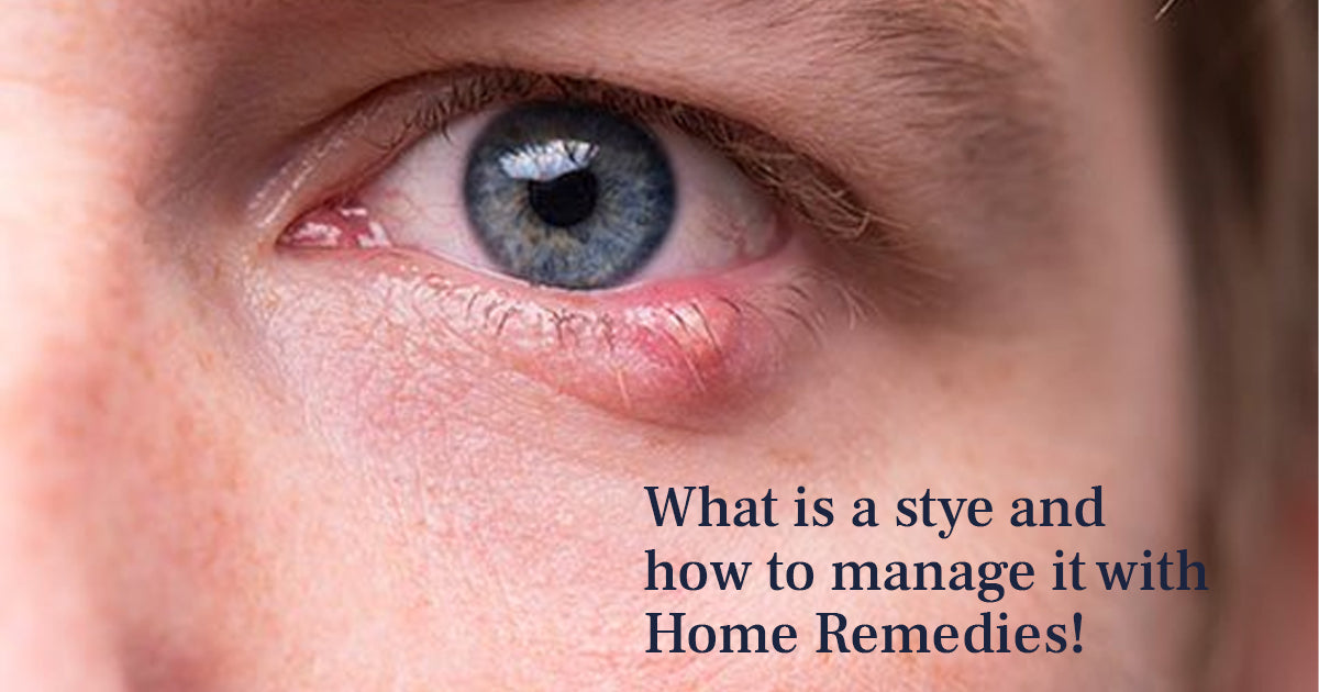 what is stye and how to manage it with home remedies