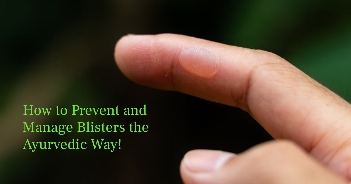 How to Prevent and Manage Blisters the Ayurvedic Way!