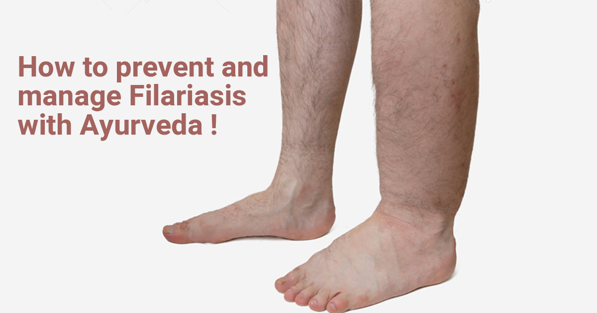How to Prevent and Manage Filariasis with Ayurveda!