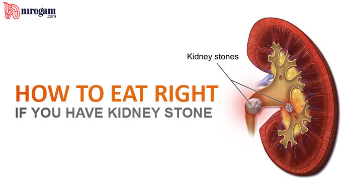 How to Eat Right if You Have Kidney Stones ?