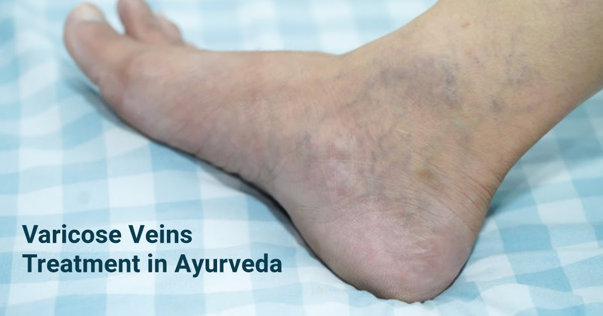 Varicose Veins treatment in Ayurveda