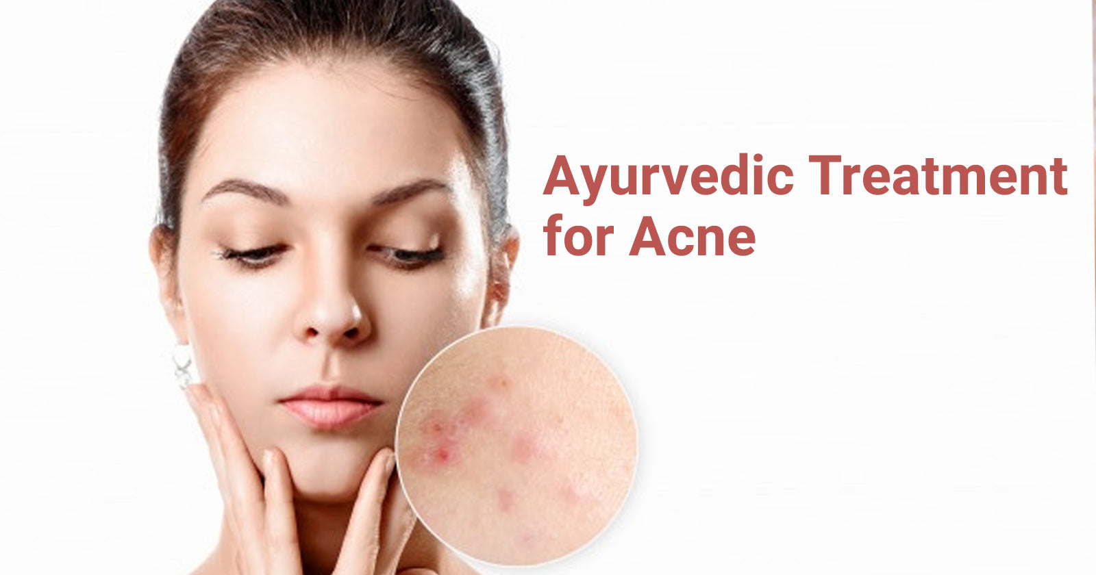 ayurvedic treatment for acne