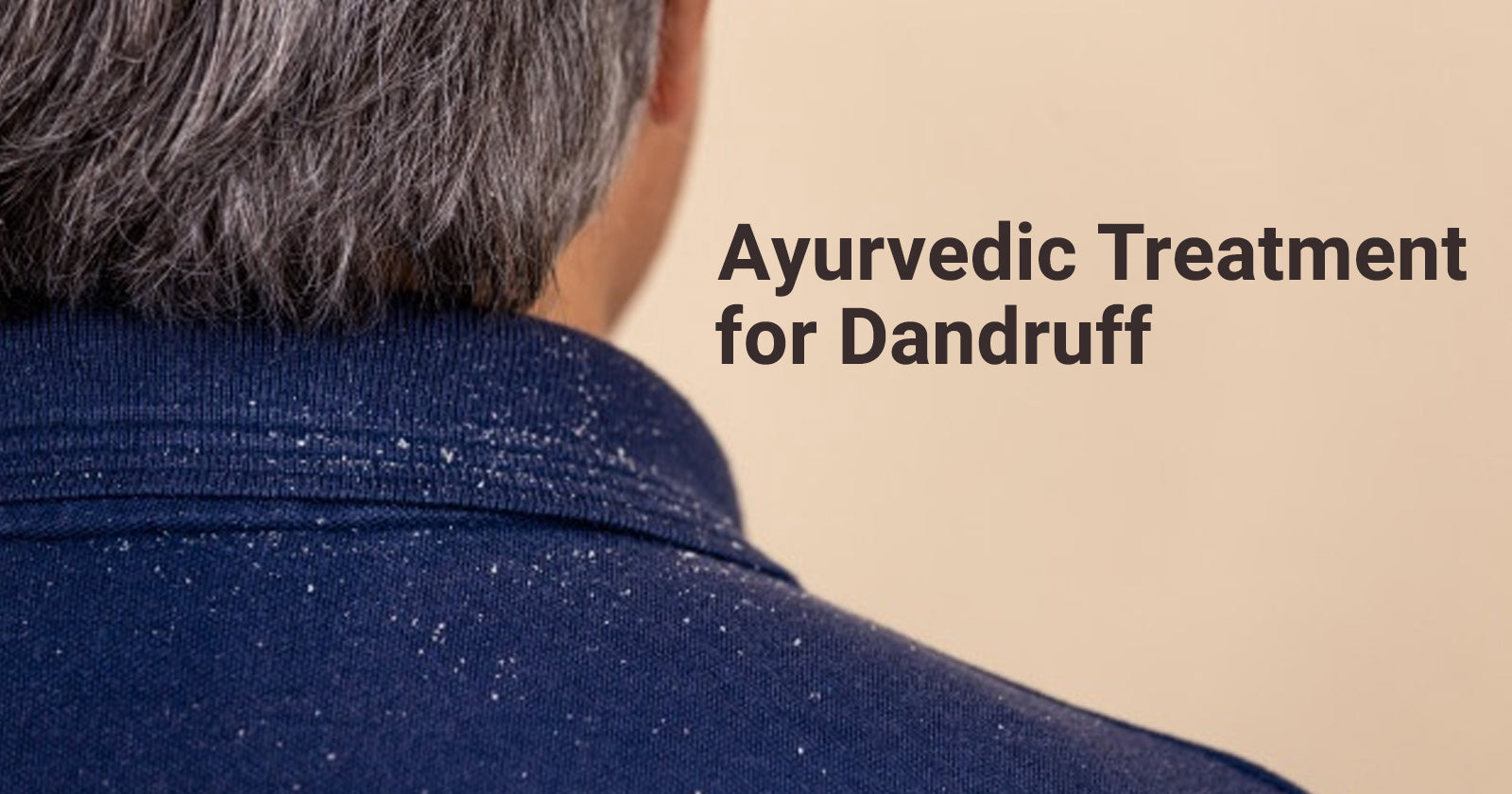 dandruff treatment in ayurveda