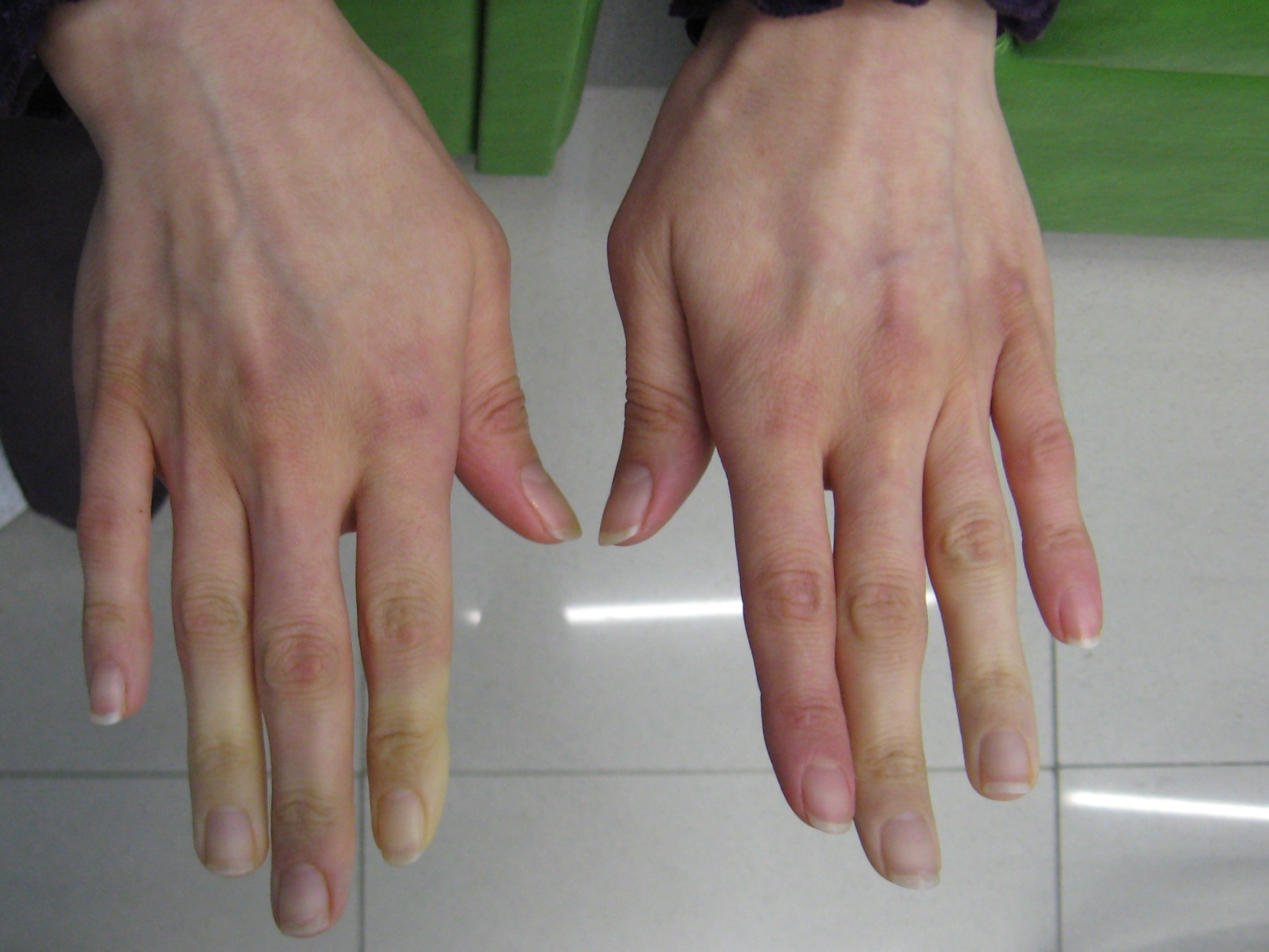 symptoms of raynauds disease