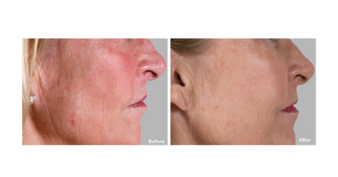 AnteAGE MD System - Wrinkles -  Before & After
