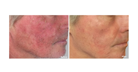 AnteAGE Serum before & after treatment