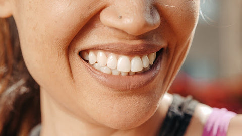 Closeup of a woman smiling with teeth