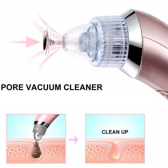 Portable Electric Blackhead Remover with Vacuum Suction