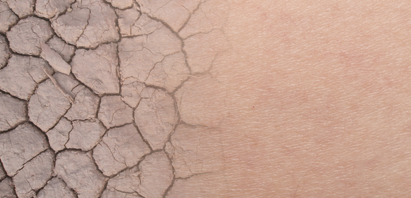Image of dry skin morphing into moisturized skin