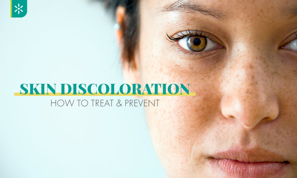 how to prevent skin discoloration