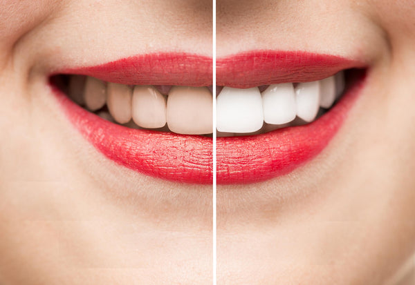 The Benefits of Having a White Smile