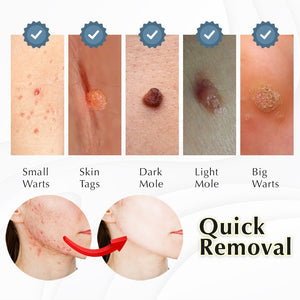 Skin Tag and Acne Removal Patch (36pcs)