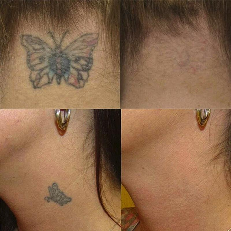 permanent tattoo removal cream