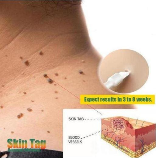 skin tag removal ointment