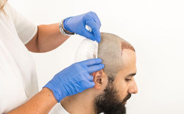 MAN BEHIND THE MIRROR - BLOG - THE MAGAZINE - HAIR TRANSPLANT SERIES - HOW DOES A HAIR TRANSPLANT ACTUALLY WORK? - BUY FINASTERIDE ONLINE - BUY MINOXIDIL ONLINE