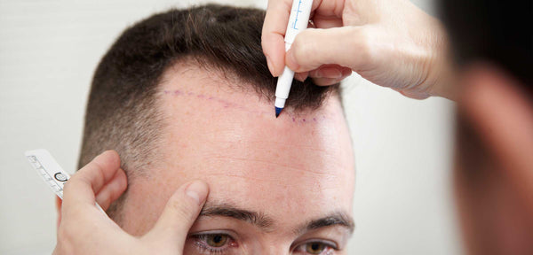 Man Behind The Mirror - Blog - How Does A Hair Transplant Actually Work - Buy Finasteride Online - Buy Minoxidil Online