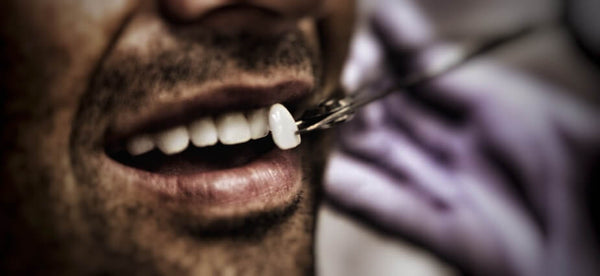 Man Behind The Mirror - Blog - Veneers - Buy Teeth Whitening Kit Online