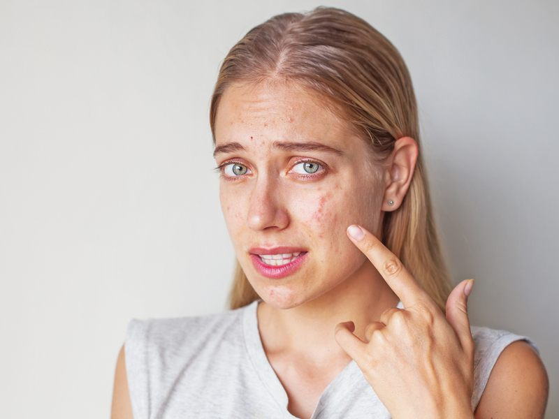 Hormones can play a major role in the development of acne