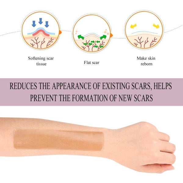 Scar Removal Silicone Gel Sheets