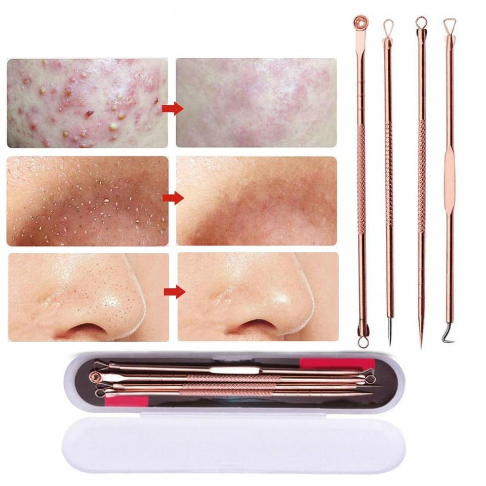 Pimple Popper Tool Extractor Acne