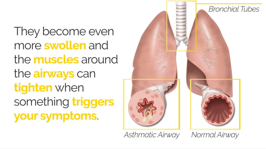About Asthma Version 2