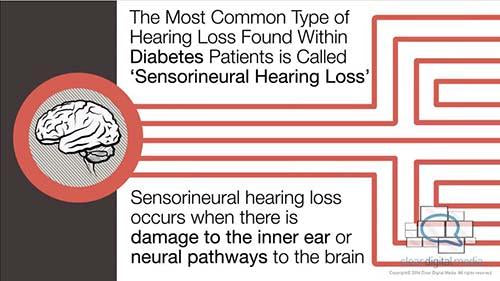 Diabetes and Hearing Loss Version 1