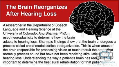 HNN Insights Brain Reorganization