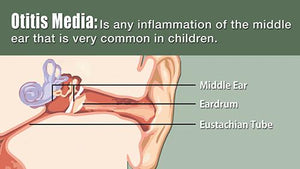Otitis Media - Version 2