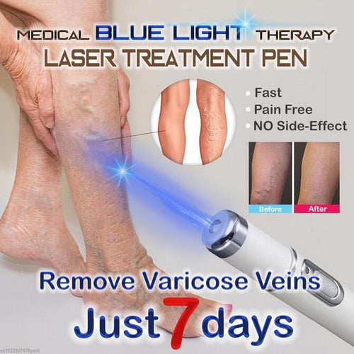 1pc Medical Blue Light Therapy Laser Pen Varicose Veins Treatment Soft Scar Wrinkle Removal Treatment Scar Acne Just 7 Days - Retfull