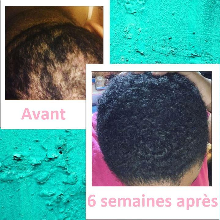 Sérum anti chute de cheveux