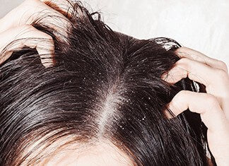 Why your shampoo might be causing dandruff and itching