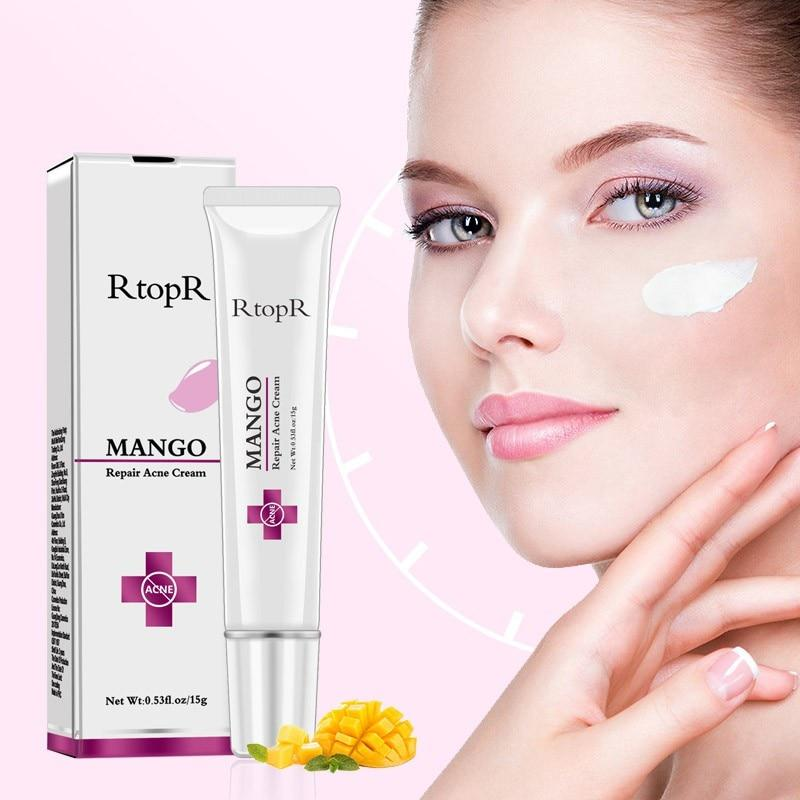 Revolutionary Mango Extract Acne Treatment Cream Warehouse Direct