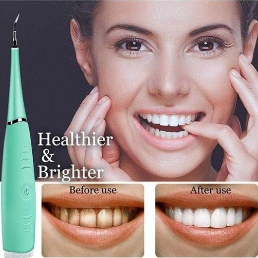 Electric Dental Calculus Plaque Remover