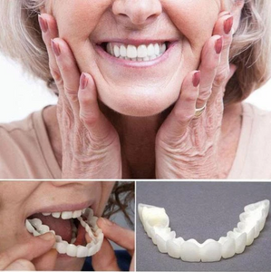 The Perfect Smile Snap-On Veneers