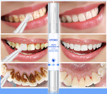 Load image into Gallery viewer, Teeth Whitening Pen