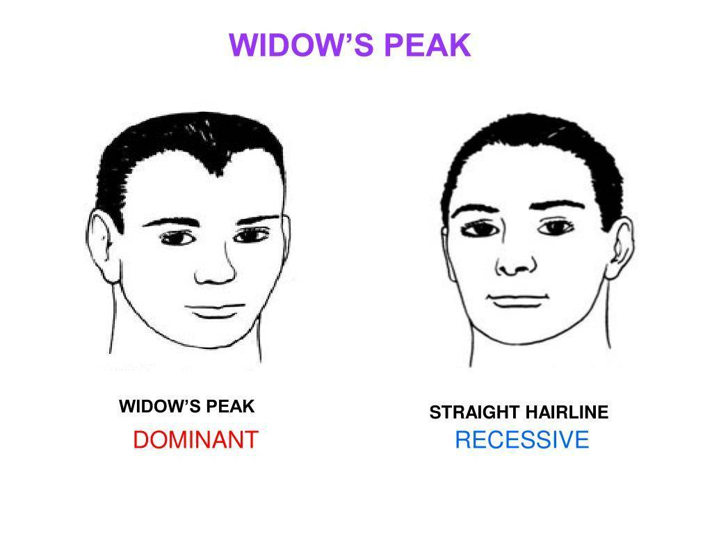 Why Do I Have a Widow's Peak Hairline?