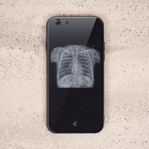 Chest X Ray Glass Phone Case