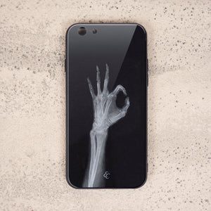 X Ray Glass Phone Case-I'm OK