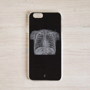 Chest X Ray Phone Case