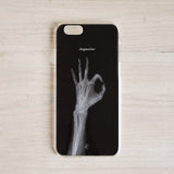 X Ray Phone Case-I'm OK