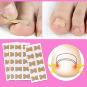 1/5Pcs Nail Strips Anti-roll Nail Free Glue Toe Inlay Nail Corrector Nail Patch Correction Stickers Toenails Nail Care Foot care