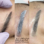 Aloor® Alkaline Tattoo Removal / Lightening Treatment