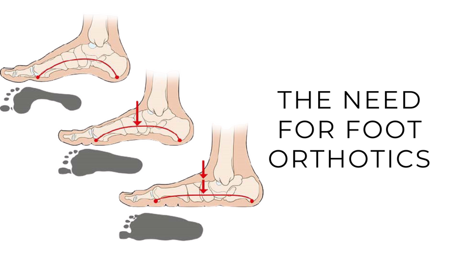 The Need for Foot Orthotics