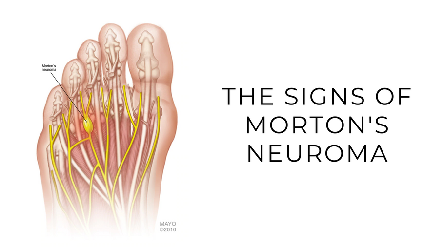 The Signs Of Morton's Neuroma