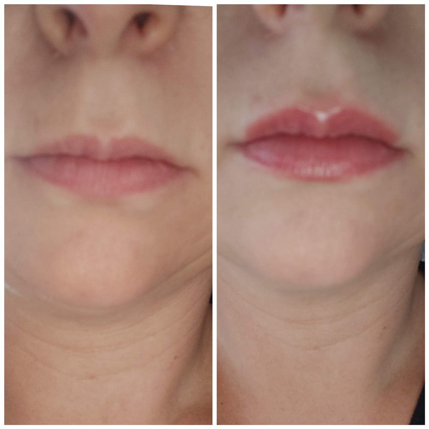BUY ONE GET ONE FREE LIP PLUMPING SERUM (choose Instant OR Extreme formula)